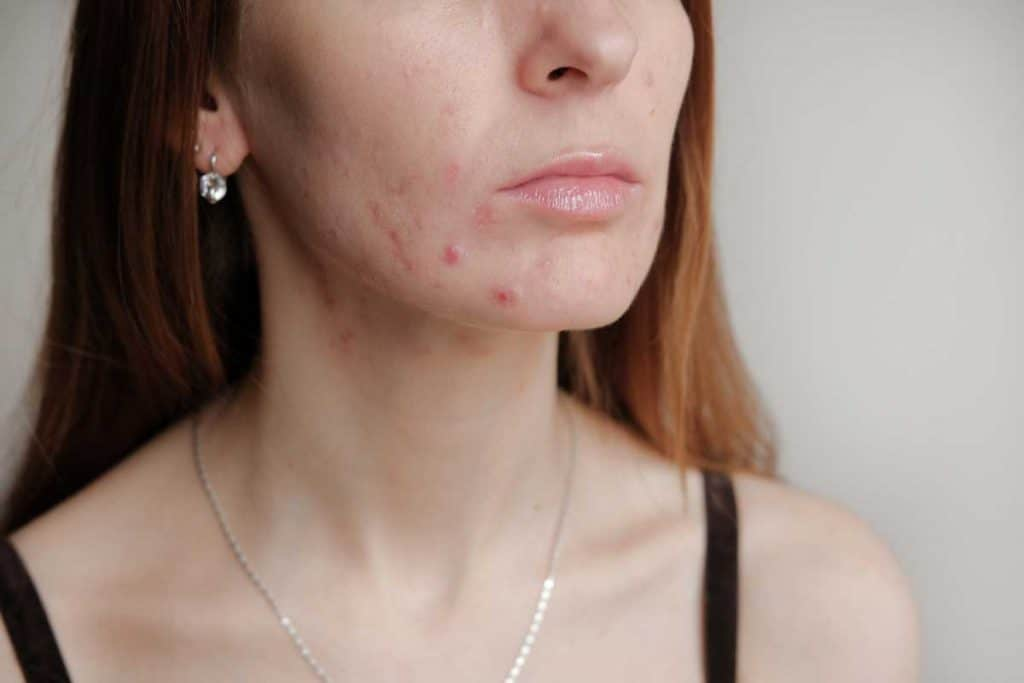 Woman with problem skin. Teen acne on young skin.