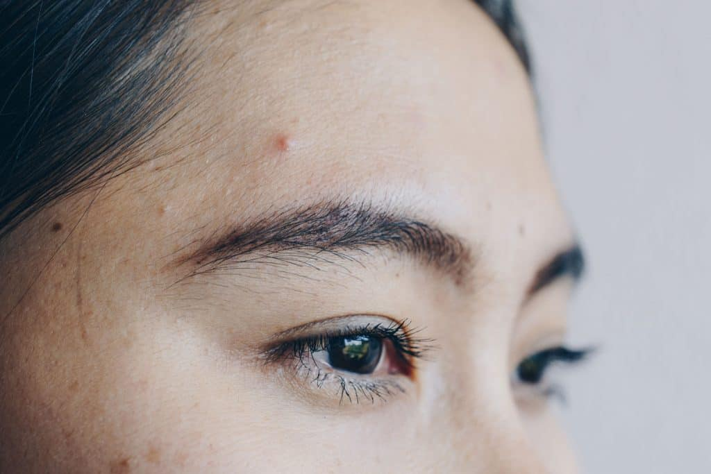A detailed photo of a woman's pimples on her forehead