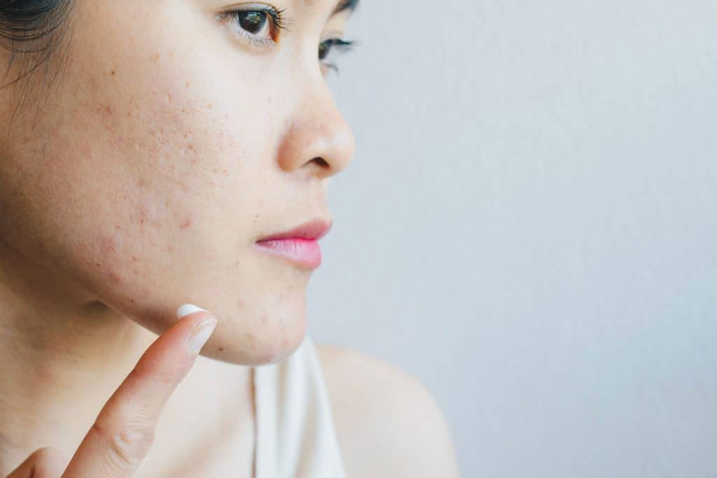 A woman putting face cream on her face due to acne problems