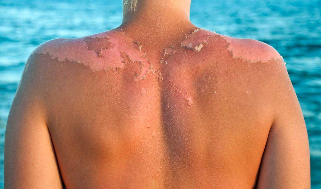 Peeling sunburned back