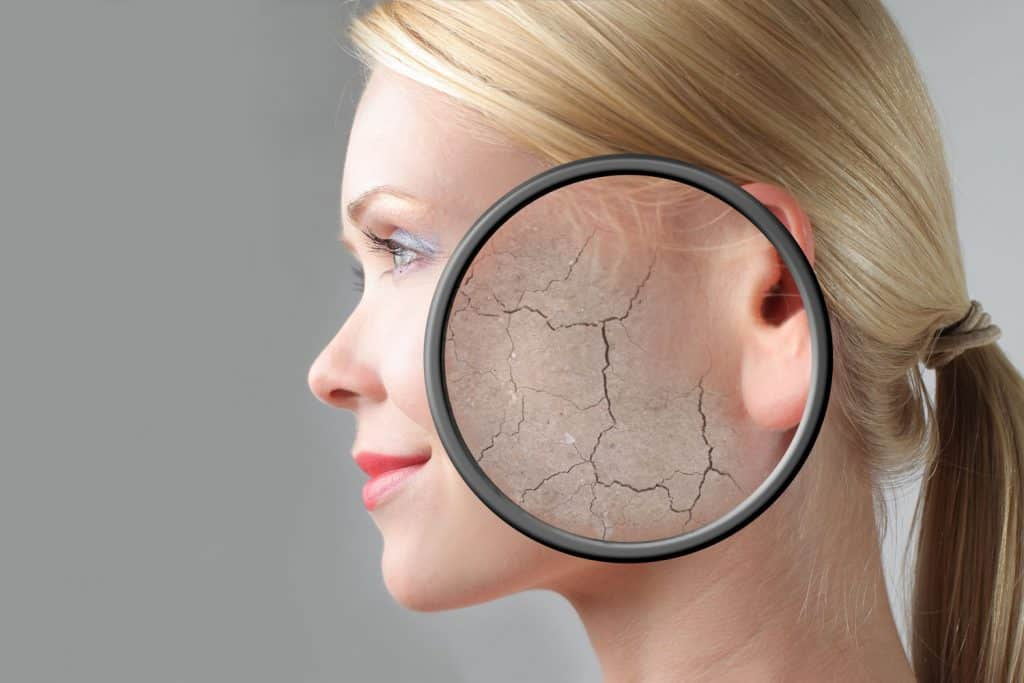A photo showing a woman cracked skin due to aging