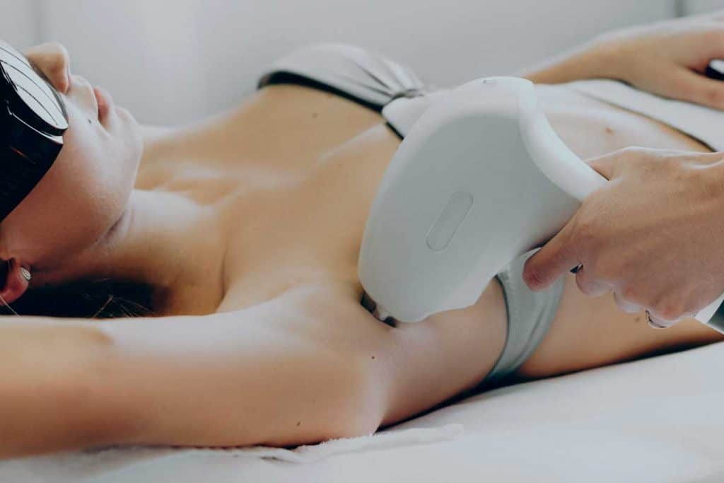 Close up photo of an armpit epilation procedure done by a professional at the salon, Does Electrolysis Require Multiple Treatments?