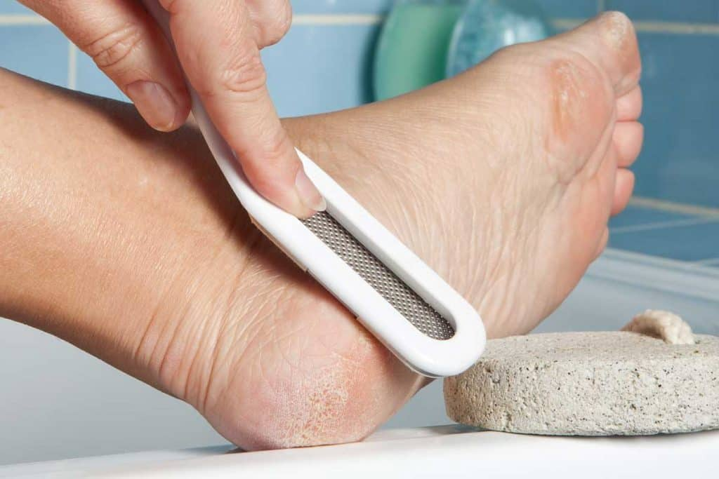 A person removing rough dry skin on foot using foot file and a pumice stone, Best Types Of Pedicure For Dry Cracked Feet