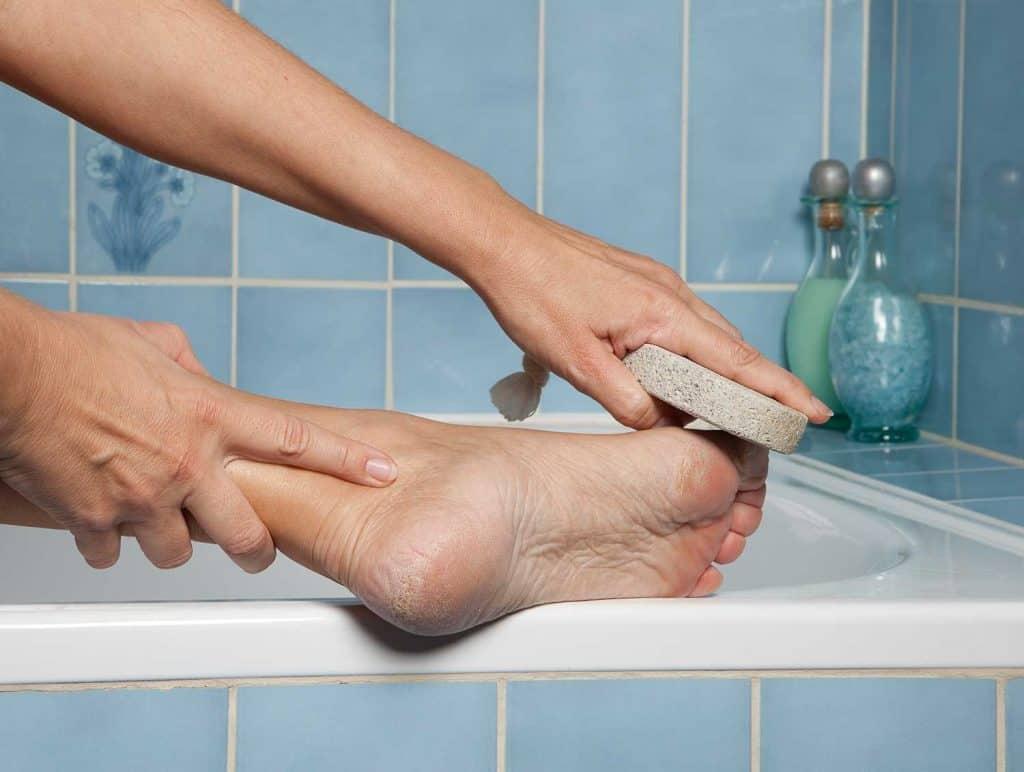 Callous feet and pumice stone